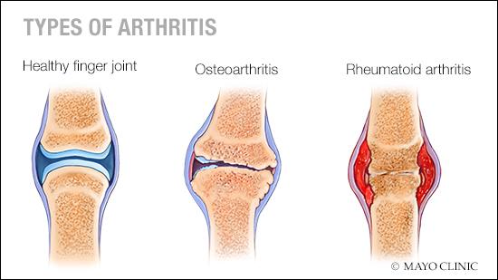 Mayo Clinic Arthritis