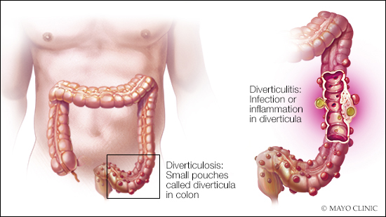 Mayo Clinic Diverticulitis